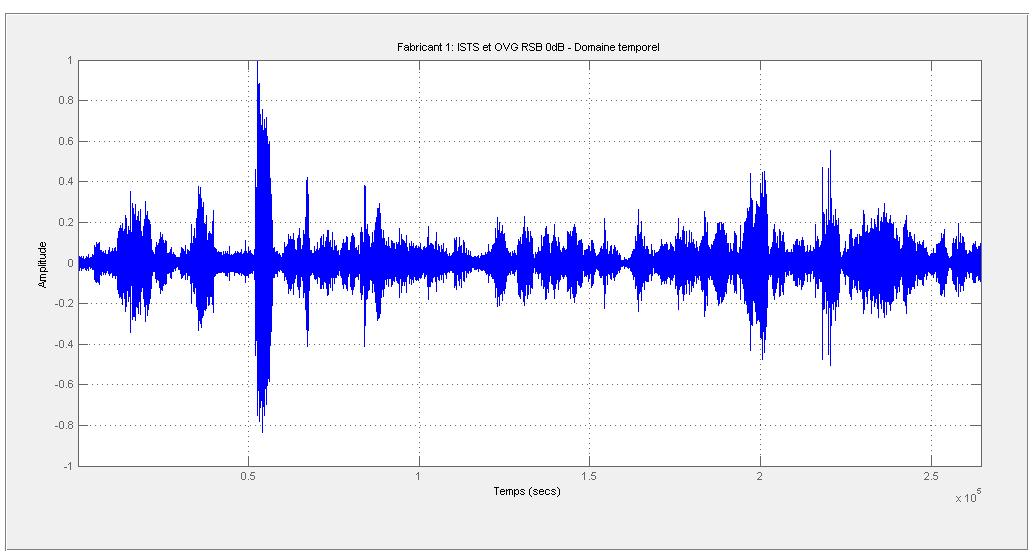 du audioprothesiste