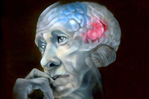 cerveau cognitif perte auditif audioprothésiste