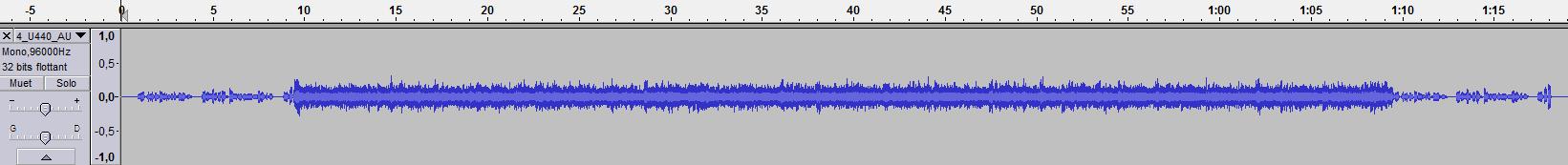 blog audioprothesiste 28 août 2017 audition binaurale (5) capacités cognitives (44) splogramme (13) stéréophonie (4) audioprothese (89) histoire de l'audioprothèse (36) audioprothesiste (22) blog-audioprothésiste (4) breaking news de l' audioprothèse (24) chaînes de mesure (42) affinity (27) audioscan (8) aurical (12) fonix (6.